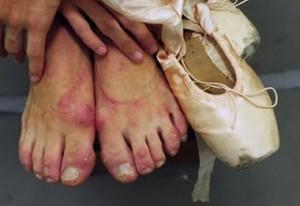 toe_shoes